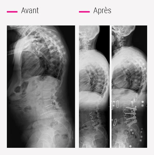7. Chirurgie du déséquilibre antérieur de la colonne